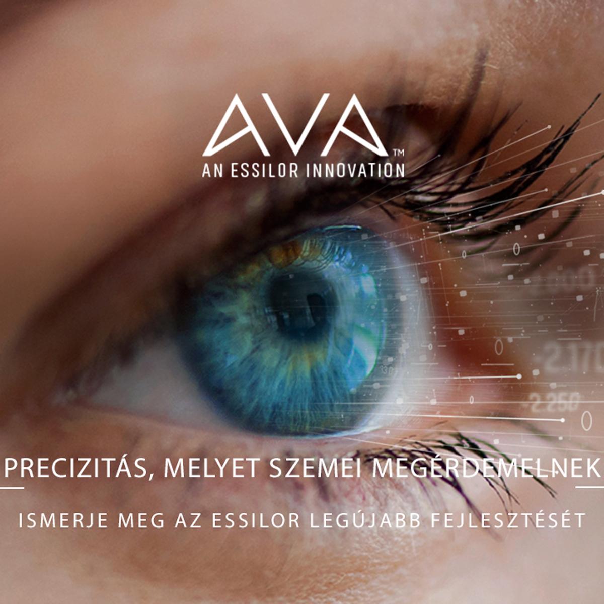 Tökéletes szemészeti vizsgálat